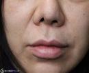 症例写真 術前 鼻孔縁複合組織移植術