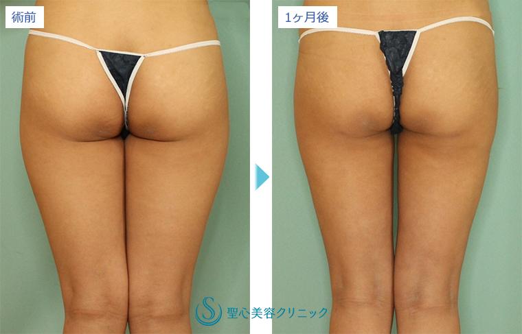 症例写真 術前術後比較 ベイザーリポ2.2脂肪吸引 太もも・お尻
