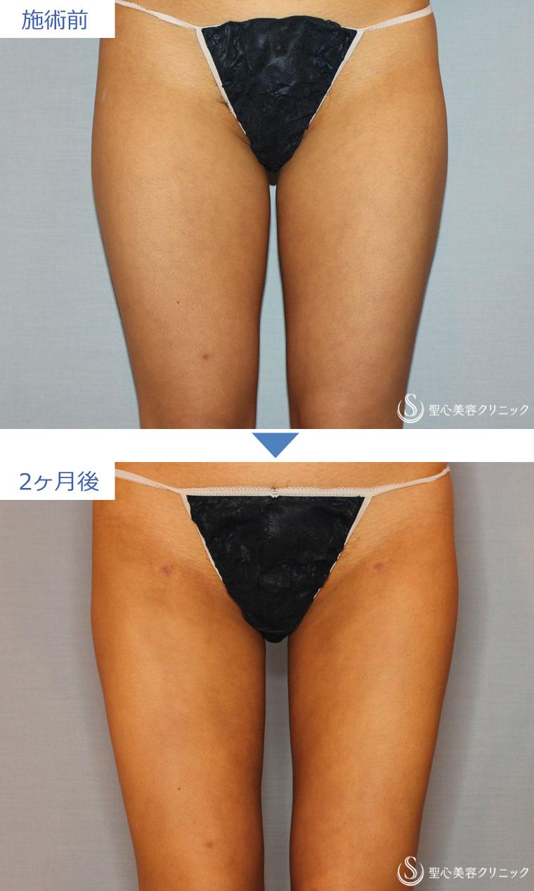 症例写真 術前術後比較 ベイザーリポ2.2脂肪吸引 太もも