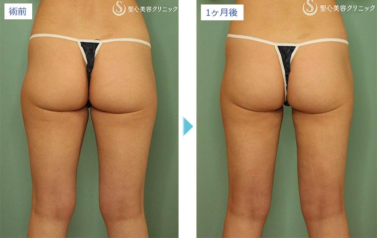 症例写真 術前術後比較 ベイザーリポ2.2脂肪吸引 膝・太もも・お尻