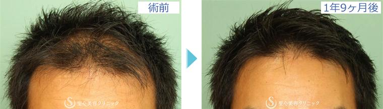 症例写真 術前術後比較 毛髪再生療法