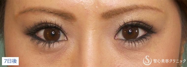 症例写真 1週間後 目のくま・くぼみ・たるみ・眼瞼下垂