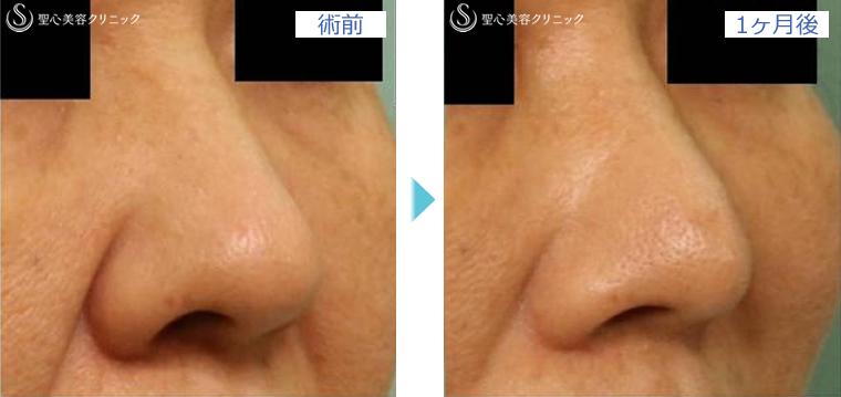 症例写真 術前後比較 鼻の整形