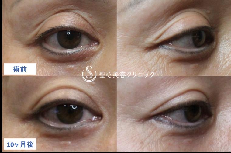 症例写真 術前比較 目のくま・くぼみ・たるみ・眼瞼下垂