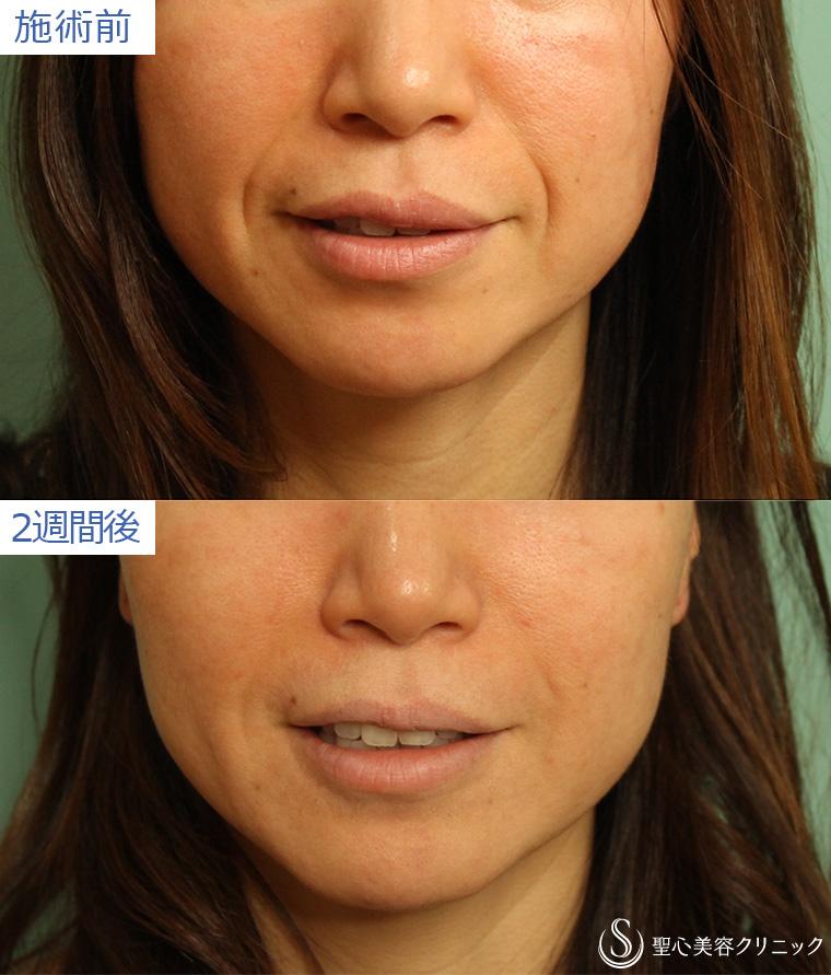 プレミアムPRP皮膚再生療法の症例写真