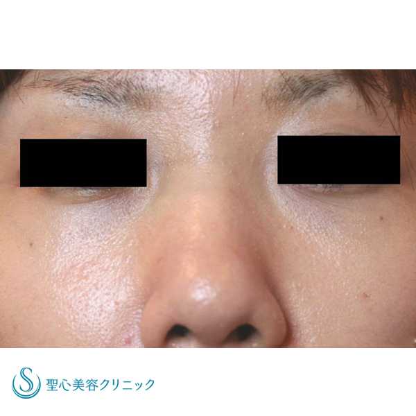 症例写真 術後 目のクマ・くぼみ・たるみ・眼瞼下垂