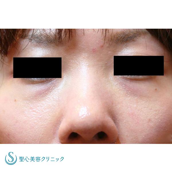 症例写真 術前 目のクマ・くぼみ・たるみ・眼瞼下垂