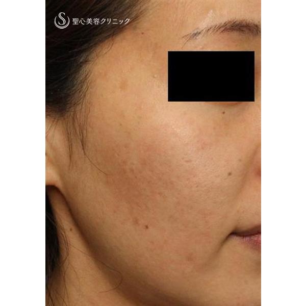 症例写真 術後 美容皮膚科 ニキビ跡・毛穴・ハリ