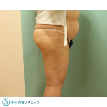症例写真 術後 ベイザーリポ2.2脂肪吸引 太もも