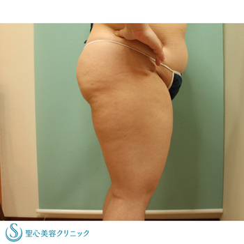 症例写真 術前 ベイザーリポ2.2脂肪吸引 太もも