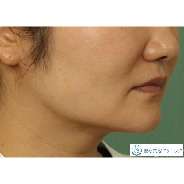 症例写真 術後 ベイザーリポ2.2脂肪吸引 頬・あご下