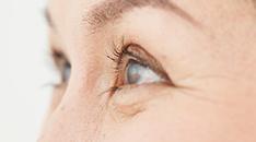 目のたるみ対策は原因によって違う!効果的な解消方法は?