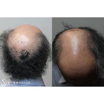 症例写真 術前 毛髪再生療法 グロースファクター再生療法