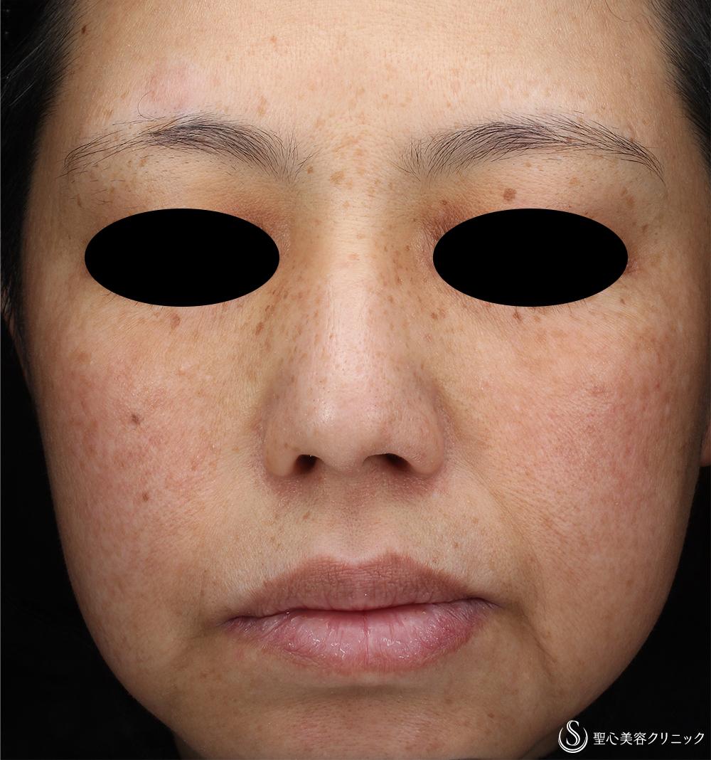 症例写真 術後 ライムライト+YAGレーザー+トラネキサム酸