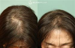 症例写真 術後 プレミアムグロースファクター再生療法