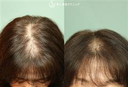 症例写真 術前 プレミアムグロースファクター再生療法