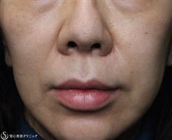 症例写真 術後 鼻孔縁複合組織移植術