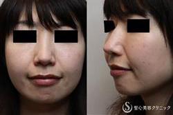 症例写真 術後 耳介軟骨移植術