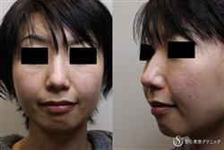 症例写真 術前 耳介軟骨移植術