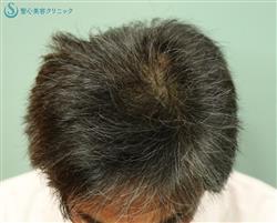 症例写真 術後 プレミアムグロースファクター、アボルブ・ミノキシジル、KIP