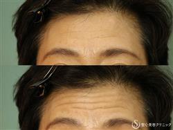 症例写真 術前プレミアムPRP皮膚再生療法