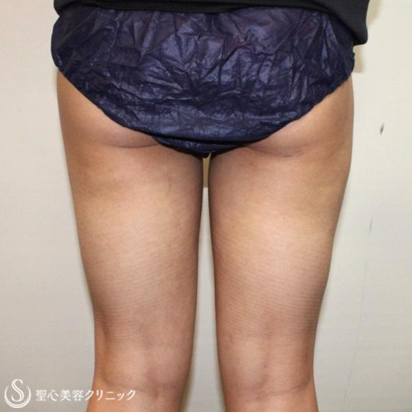 症例写真 術後 ベイザーリポ2.2脂肪吸引 太もも・お尻