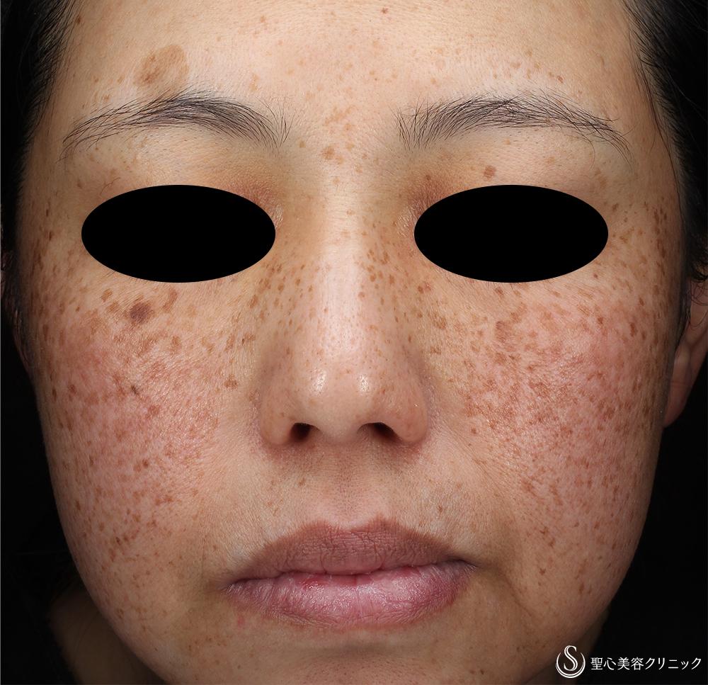 症例写真 術前 ライムライト+YAGレーザー+トラネキサム酸