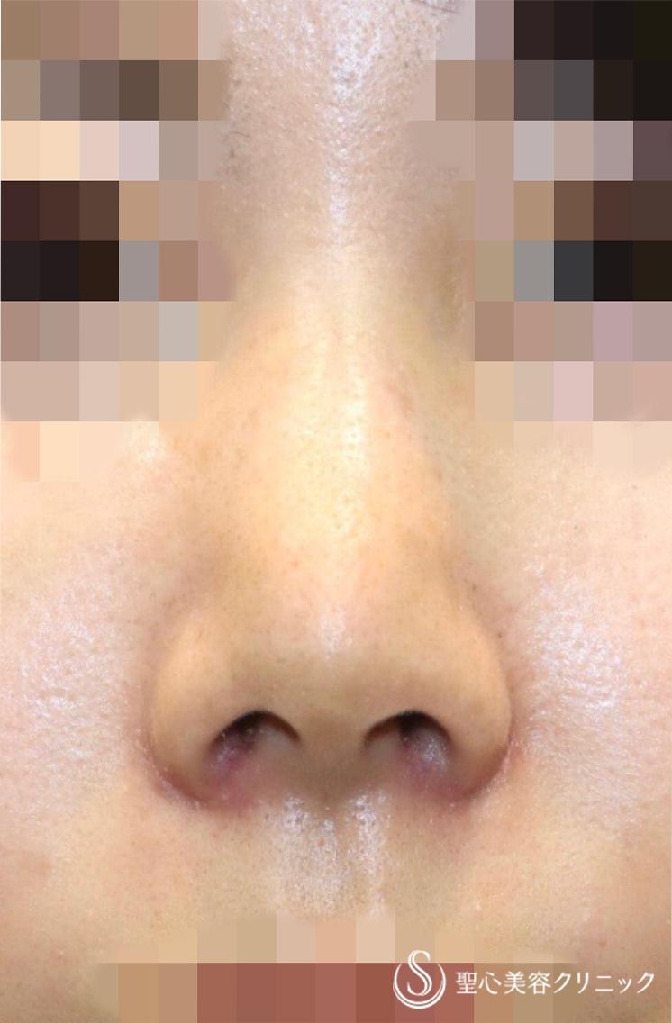 の 穴 三角 鼻